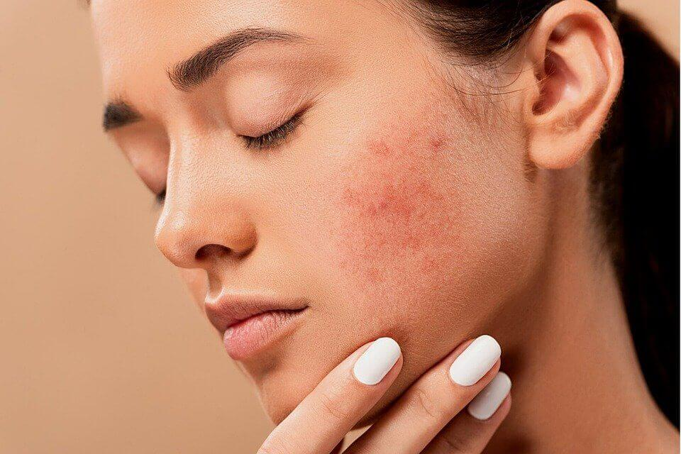 pimples how to remove pimples how to get rid of a pimple overnight how to get rid of a pimple instantly top 3 acne treatments acne scars natural treatment how to get rid of acne fast